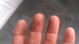 propolis, handen